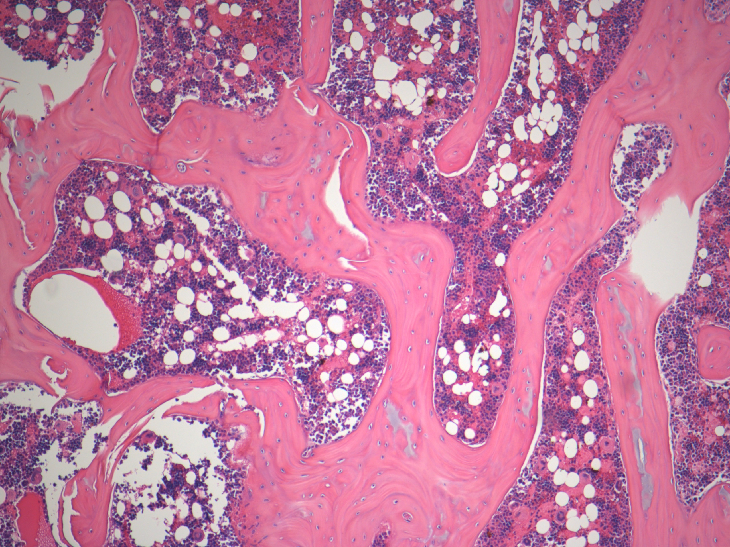 microscopic bone marrow stained with H&E