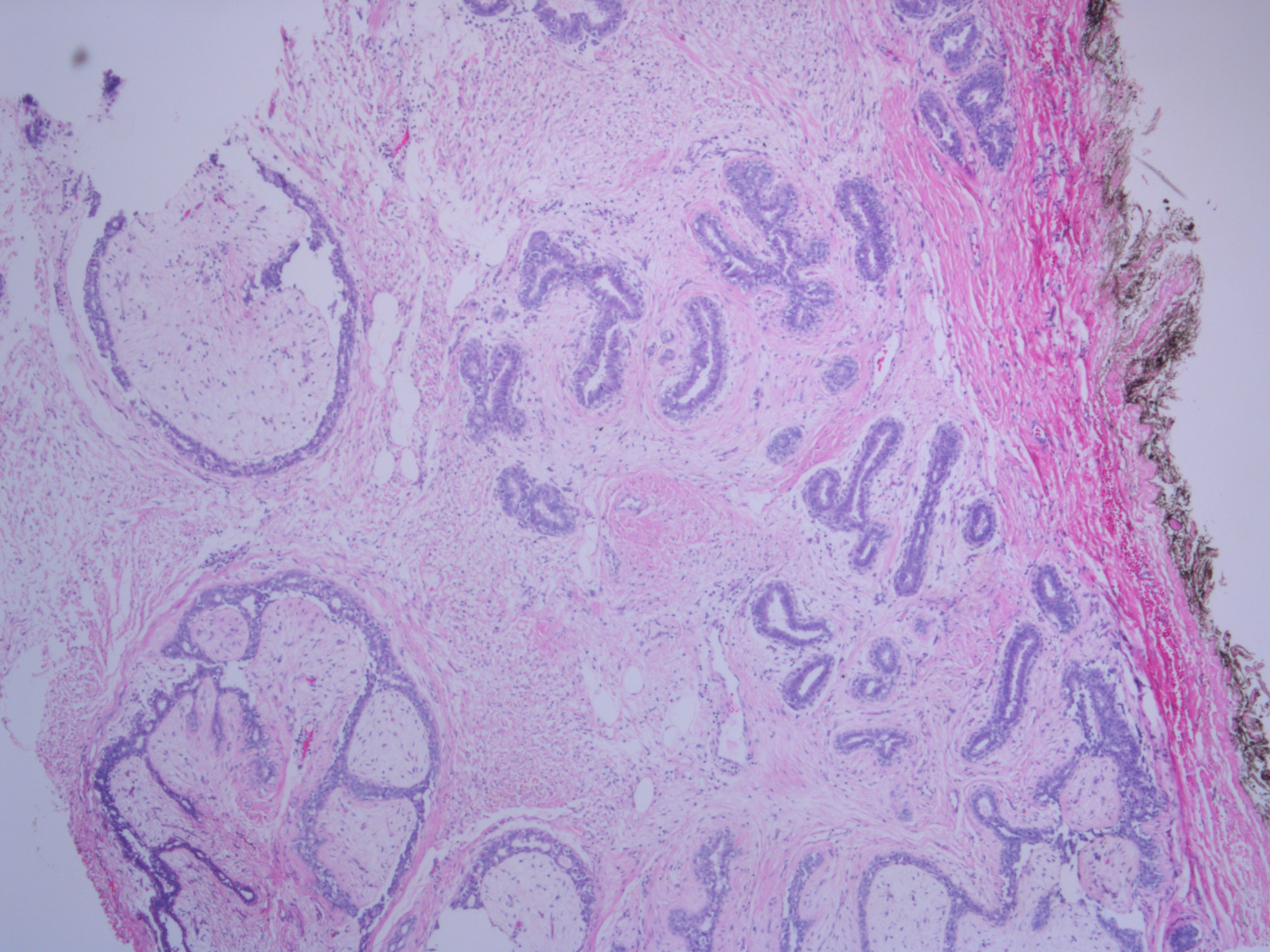 microscopic breast stained with H&E